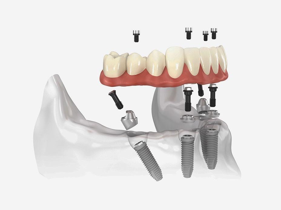 Имплантация без костной платики